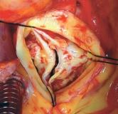 راهنمایی هایی برای درمان تنگی دریچه آئورت قلب