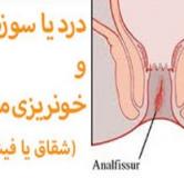 علائم،علل،پیشگیری و درمان خونریزی دستگاه گوارشی