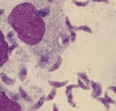 بیماری توکسوپلاسموز چیست؟ راهنمای درمان توکسوپلاسموز