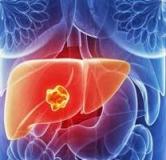 آیا سرطان کبد قابل درمان است ؟ راه درمان سرطان کبد با طب سنتی و طب جدید