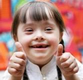 سندرم داون چیست ؟ راهنمایی های برای درمان مبتلایان سندرم داون