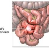 مختصری درباره بیماری مادرزادی دیورتیکول مکل