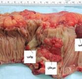 علائم سرطان روده بزرگ چیست ؟ درمان دارویی و درمان گیاهی سرطان روده بزرگ