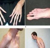 سندرم مارفان / علت، علائم و راههای درمان