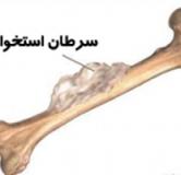 آیا سرطان مغز استخوان درمان دارد ؟ درمان سرطان استخوان با گیاهان دارویی