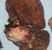 آیا سرطان ریه درمان دارد ؟ راههای درمان سرطان ریه با طب سنتی و پزشکی جدید