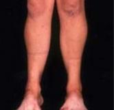 بیماری شارکو ماری توث چیست؟ روشهای موجود در درمان