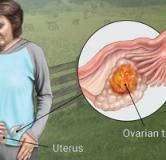 آیا سرطان رحم قابل درمان است ؟ روشهای درمان دارویی و درمان گیاهی سرطان رحم