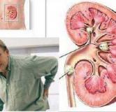 داروهای گیاهی برای درمان سنگ کلیه و راههای درمان سنگ کلیه