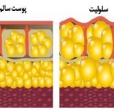 راههای درمان سلولیت در طب سنتی و پزشکی جدید