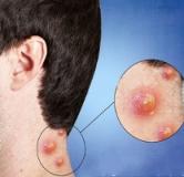 دمل یا آبسه چیست ؟ درمان جوش های چرکی و دردناک