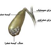 درمان سنگ کیسه صفرا با گیاهان دارویی