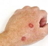 آیا سرطان پوست درمان دارد ؟ روشهای درمان سرطان پوست در طب سنتی و پزشکی جدید