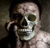 سندرم کوتارد یا سندرم مرده متحرک چیست ؟