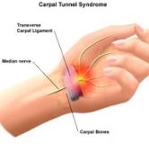 درمان سندرم تونل کارپال در طب سنتی و روشهای درمان در طب جدید
