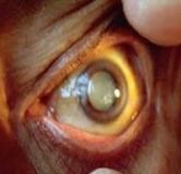 راهنمای درمان بیماری چشمی دژنراسیون ماکولا یا تباهی لکه زرد