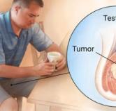 علائم سرطان بیضه در مردان و راههای درمان سرطان بیضه چیست؟