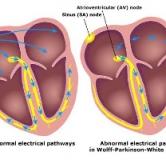 سندرم ولف پارکینسون وایت چیست و چگونه درمان می شود؟