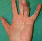 مختصر و مفید درباره بیماری دوپویترن یا انقباض انگشتان