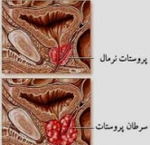 آیا سرطان پروستات قابل درمان است ؟ درمان سرطان پروستات با داروی گیاهی و شیمیایی