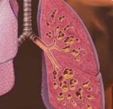 درمان گیاهی فیبروز ریه به همراه راهکارهای طب جدید برای درمان