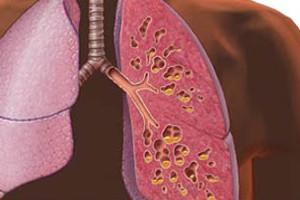 درمان گیاهی فیبروز ریه