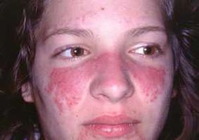 درمان بیماری لوپوس چیست و چگنه انجام می شود؟-Hyperbola - مجله خلایق - خلایق