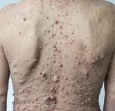 بیماری نوروفیبروماتوز چیست و چگونه درمان می شود؟