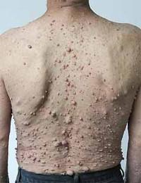 بیماری نوروفیبروماتوز