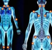 شناخت بیماری فیبرومیالژیا به همراه درمان گیاهی فیبرومیالژیا