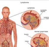 درمان سرطان لنفوم چگونه انجام می پذیرد ؟