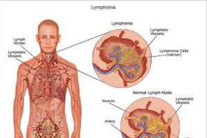 درمان سرطان لنفوم-Hyperbola - مجله خلایق - خلایق