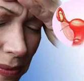 علائم یائسگی در زنان و روش های درمان آن