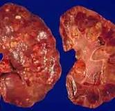 علایم عفونت کلیه و راه های پیشگیری و درمان