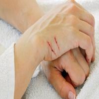 درمان خراشیدگی پوست