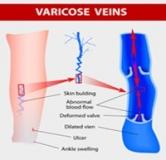 برای درمان واریس چه باید کرد/ درمان های خانگی برای بیماری واریس