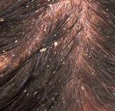 ۱۱ روش درمان خانگی شوره سر به همراه علل شوره سر