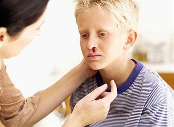 علل خونریزی بینی
