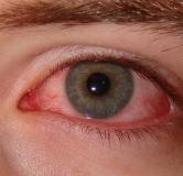 علائم و درمان خشکی چشم + راههای پیشگیری از خشکی چشم