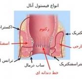 راهنمای کامل درمان فیستول مقعدی با طب سنتی و طب مدرن