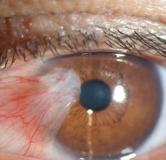 روشهای درمان ناخنک چشم در طب سنتی و طب مدرن