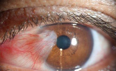 درمان ناخنک چشم در طب سنتی