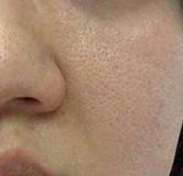 آموزش بستن منافذ باز پوست صورت