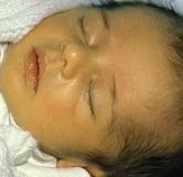 درمان زردی نوزاد چگونه است؟