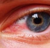 تکنیک های رفع خستگی چشم در هنگام کار با کامپیوتر