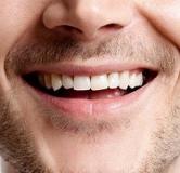 ۸ تا از روشهای سفید کردن دندان در خانه که تا به حال نمیدانستید