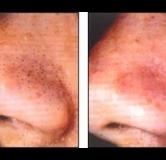 ۸ درمان طبیعی مؤثر و سریع برای از بین بردن جوش های سر سیاه بینی