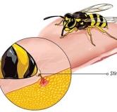 درمان گزیدگی زنبور