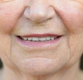 چند حرکت مؤثر برای برطرف کردن خط خنده با ورزش به همراه سایر درمانها