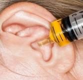 با کمک این ۵ درمان تجمع جرم گوش به راحتی جرم گوشتان را تخلیه کنید